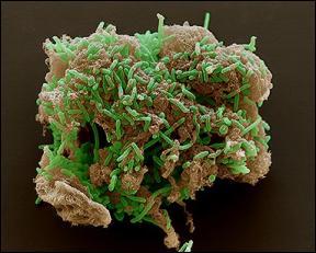 Bacteria_uranio_02
